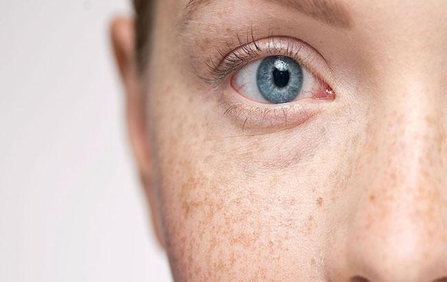 اثر و عوارض تابش آفتاب بر پوست