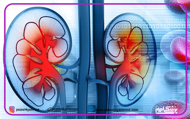 درمان بیماریهای کلیوی و مجاری ادراری با رویکرد سلول درمانی