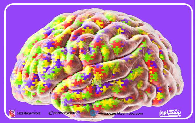 سرچشمۀ بروز اختلال اوتیسم در چیست ؟