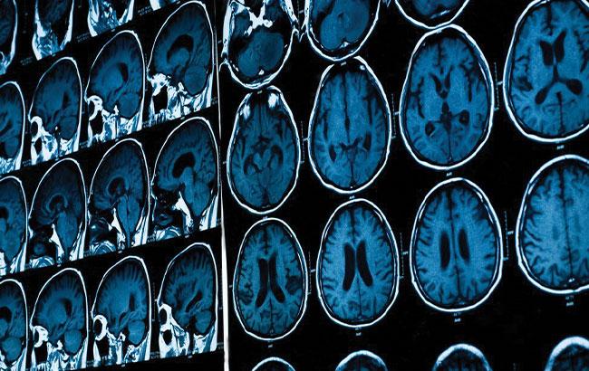 ابتلاء سیستم عصبی و سیستم اعصاب محیطی با کووید-19