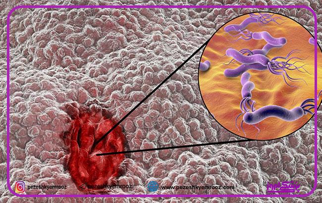 ارتباط زخم معده و بیماری کووید-19